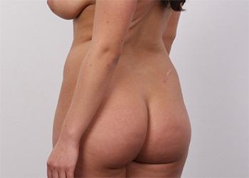Tereza Czech Casting Curves