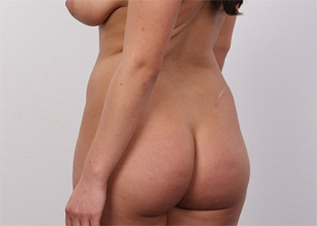 Tereza Czech Casting Nudes